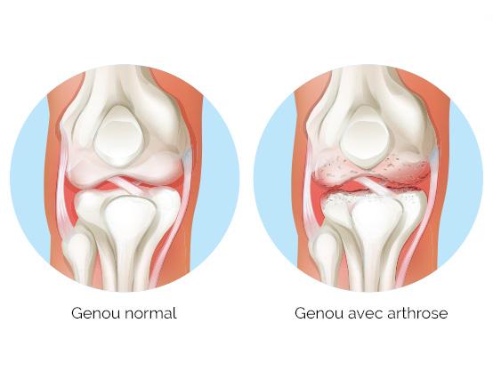 arthrose, arthrite, genou